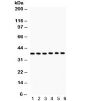 Western blot testing of 1) rat testis, 2) rat ovary, 3) mouse testis, 4) mouse ovary, 5) human COLO320 and 6) MM231 lysate with TBP antibody. Predicted/observed molecular weight ~38 kDa.