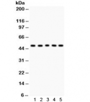 Western blot testing of 1) rat skeletal muscle, 2) human HeLa, 3) COLO320, 4) HepG2, and 5) MCF7 with Cyclin A2 antibody. Expected/observed molecular weight ~49 kDa.