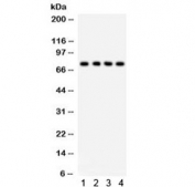 Western blot testing of 1) rat thymus, 2) rat liver, 3) human HeLa and 4) A549 lysate with TNFRSF1B antibody. Predicted molecular weight: 50/70~80 kDa (unmodified/glycosylated).