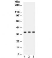 Western blot testing of human 1) placenta, 2) HeLa and 3) 293 lysate with Cyclin D1 antibody. Predicted molecular weight: 32-36 kDa.
