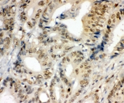 IHC staining of FFPE human intestinal cancer with NR2F2 antibody at 1ug/ml. HIER: boil tissue sections in pH6, 10mM citrate buffer, for 10-20 min and allow to cool before testing.