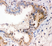 IHC staining of FFPE human breast cancer with NR2F2 antibody at 1ug/ml. HIER: boil tissue sections in pH6, 10mM citrate buffer, for 10-20 min and allow to cool before testing.