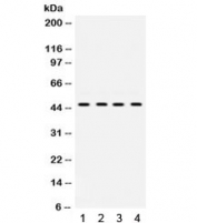 Western blot testing of 1) rat liver and human 2) HeLa, 3) A431 and 4) SW620 lysate with NR2F2 antibody. Expected/observed molecular weight ~46 kDa.