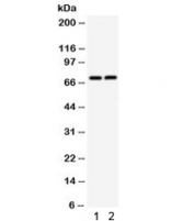 Western blot testing of 1) rat thymus and 2) mouse thymus lysate with TNFRSF1B antibody. Predicted molecular weight: 50/70~80 kDa (unmodified/glycosylated).