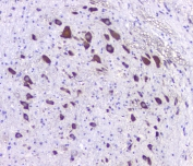 IHC staining of FFPE rat brain with 5HT2AR antibody at 1ug/ml. HIER: boil tissue sections in pH6, 10mM citrate buffer, for 10-20 min followed by cooling at RT for 20 min.