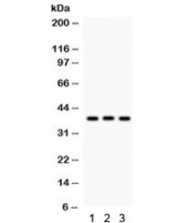 Western blot testing of 1) rat liver, 2) rat thymus and 3) human HeLa lysate with CTGF antibody. Predicted/observed molecular weight ~38 kDa.