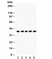 Western blot testing of human 1) MCF7, 2) HeLa, 3) A549, 4) HepG2 and 293 cell lysate with Cdk7 antibody.  Predicted/observed molecular weight ~37 kDa.