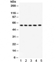 Western blot testing of 1) rat testis, 2) rat liver, 3) human placenta, 4) MCF7 and 5) HeLa lysate with AGFG1 antibody. Expected/observed molecular weight ~58 kDa.