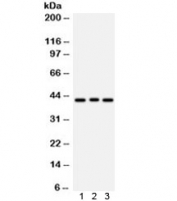 Western blot testing of 1) rat brain, 2) human COLO320 and 3) human HeLa lysate with ATXN3 antibody. Predicted/observed molecular weight ~42 kDa.