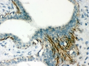 IHC testing of FFPE human breast cancer tissue with Actin antibody. HIER: Boil the paraffin sections in pH 6, 10mM citrate buffer for 20 minutes and allow to cool prior to staining.
