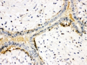 IHC testing of FFPE human breast cancer tissue with anti-Actin antibody. HIER: Boil the paraffin sections in pH 6, 10mM citrate buffer for 20 minutes and allow to cool prior to staining.