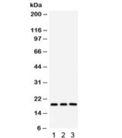 Western blot testing of 1) rat brain, 2) mouse brain and 3) human HeLa lysate with SFRS3 antibody. Predicted/observed molecular weight ~19 kDa.