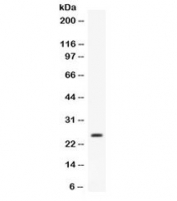 Western blot testing of mouse liver lysate with Apolipoprotein A I antibody. Predicted molecular weight ~30 kDa.