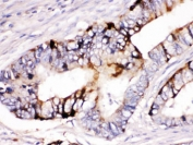 IHC testing of FFPE human intestine cancer tissue with ZP2 antibody. HIER: Boil the paraffin sections in pH 6, 10mM citrate buffer for 20 minutes and allow to cool prior to staining.