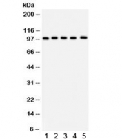 Western blot testing of 1) rat brain, 2) rat liver, 3) human HeLa, 4) HepG2 and 5) mouse HEPA lysate with ASPH antibody. Predicted molecular weight ~86 kDa, observed here at ~100 kDa.