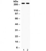 Western blot testing of 1) rat brain and 2) mouse brain lysate with NMDAR2B antibody. Expected molecular weight ~166 kDa, observed here at ~220 kDa.