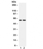 Western blot testing of 1) rat brain and 2) human HeLa lysate with ATG14L antibody. Expected/observed molecular weight ~59 kDa.