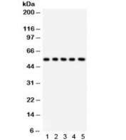 Western blot testing of 1) rat liver, 2) rat testis, 3) human HeLa, 4) human RH35, and 5) mouse HEPA1-6 lysate with SSH3BP1 antibody. Expected/observed molecular weight ~55 kDa.