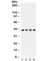 Western blot testing of 1) rat thymus, 2) rat testis, 3) human MCF7 and 4) A549 lysate with ADIPOR1 antibody. Expected/observed molecular weight ~43 kDa.