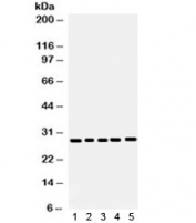 Western blot testing of 1) mouse lung, 2) mouse liver, 3) human SW620, 4) SMMC and 5) human placenta lysate using APH1A antibody.  Expected/observed molecular weight: 27~29 kDa.