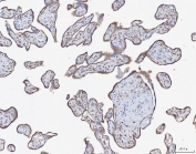 IHC testing of FFPE human breast cancer tissue with ATX2 antibody. HIER: Boil the paraffin sections in pH 6, 10mM citrate buffer for 20 minutes and allow to cool prior to staining.