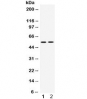 Western blot testing of 1) rat thymus and 2) human Jurkat lysate with VRK1 antibody. Predicted molecular weight ~45 kDa, observed here at ~55 kDa.
