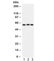 Western blot testing of 1) rat liver, 2) human placenta, 3) A549 lysate with Heparanase 1 antibody. Predicted molecular weight: 61 kDa (isoform 1), ~53 kDa (isoform 2/3), ~43 kDa (isoform 4).