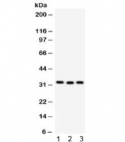 Western blot testing of 1) rat liver, 2) mouse spleen and 3) human MCF7 lysate with C1QBP antibody. Expected molecular weight ~31 kDa.