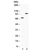 Western blot testing of 1) rat ovary and 2) human SKOV lysate with ZP1 antibody. Expected molecular weight: 70/90-110 kDa (unmodified/glycosylated).