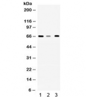 Western blot testing of 1) rat liver, 2) mouse brain and 3) A431 lysate with WDR1 antibody. Expected/observed molecular weight ~66 kDa.