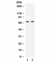 Western blot testing of human 1) Jurkat and 2) CEM cell lysate with ZAP70 antibody. Expected molecular weight ~70 kDa.