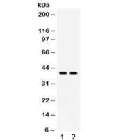 Western blot testing of human 1) HeLa and 2) COLO320 cell lysate with Adenosine deaminase antibody. Expected molecular weight ~41 kDa.