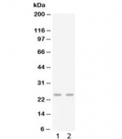 Western blot testing of 1) mouse lung and 2) mouse spleen lysate with Gro gamma antibody. Predicted molecular weight ~11 kDa, observed here at ~25 kDa.