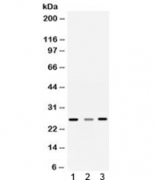 Western blot testing of 1) rat liver, 2) rat brain and 3) human SMMC-7721 lysate with Sorcin antibody. Predicted molecular weight ~22 kDa, routinely observed at 22-29 kDa.