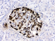IHC testing of FFPE human pancreatic cancer tissue with GIP antibody. HIER: Boil the paraffin sections in pH 6, 10mM citrate buffer for 20 minutes and allow to cool prior to testing.