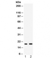 Western blot testing of 1) mouse spleen and 2) mouse liver lysate with PYY antibody at 0.5ug/ml. Expected molecular weight: 11/4 kDa (preproprotein/mature).