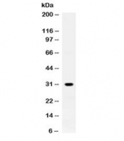 Western blot testing of rat skeletal muscle lysate with ZWINT antibody at 0.5ug/ml. Expected molecular weight ~31 kDa.
