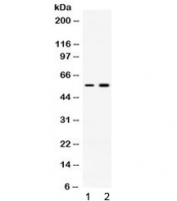 Western blot testing of 1) rat skeletal muscle and 2) human MCF7 lysate with ACVR2B antibody at 0.5ug/ml. Expected molecular weight ~57 kDa.