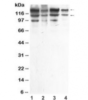 Western blot testing of human 1) HeLa, 2) A549, 3) MCF7 and 4) HepG2 cell lysate with ADAR1 antibody at 0.5ug/ml. Predicted molecular weight ~136 kDa.