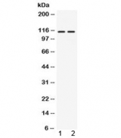 Western blot testing of 1) rat thymus and 2) human 22RV1 lysate with AGO4 antibody at 0.5ug/ml. Predicted molecular weight ~97 kDa, observed here at ~115 kDa.