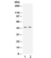 Western blot testing of 1) human A431 and 2) human Jurkat cell lysate with APOBEC3G antibody at 0.5ug/ml. Predicted molecular weight: ~46 kDa.