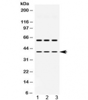 Western blot testing of 1) rat brain, 2) mouse brain and 3) human HepG2 lysate with ADH5 antibody at 0.5ug/ml. Predicted molecular weight ~40 kDa.