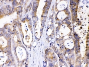 IHC testing of FFPE human intestinal cancer tissue with ABHD5 antibody at 1 ug/ml. HIER: steam sections in pH6 citrate buffer for 20 min.