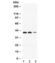 Western blot testing of 1) rat liver, 2) mouse liver and 3) HepG2 lysate with ADH4 antibody at 0.5ug/ml. Predicted molecular weight ~40 kDa.