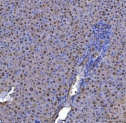 Flow cytometry testing of human HL60 cells with ADK antibody at 1ug/10^6 cells (blocked with goat sera); Red=cells alone, Green=isotype control, Blue=ADK antibody.