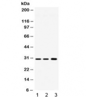 Western blot testing of 1) rat brain, 2) mouse brain and 3) human HeLa lysate with AQP11 antibody at 0.5ug/ml. Predicted molecular weight ~30 kDa.