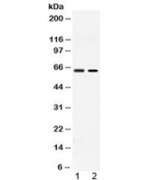 Western blot testing of 1) rat testis and 2) human MCF7 lysate with ACCN1 antibody at 0.5ug/ml. Predicted molecular weight ~58 kDa.