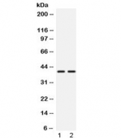 Western blot testing of 1) rat testis and 2) mouse testis lysate with TXNL2 antibody at 0.5ug/ml. Expected molecular weight: ~40 kDa.