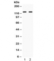 Western blot testing of 1) rat testis and 2) human HepG2 lysate with LRIG3 antibody at 0.5ug/ml.  Observed molecular weight: ~123 kDa (precursor), 140-170 kDa (glycosylated).