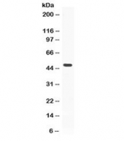 Western blot testing of human MCF7 lysate with ADRP antibody at 0.5ug/ml.  Predicted/observed molecular weight ~48 kDa.